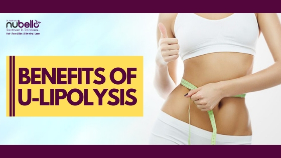 benefits of u-lipolysis