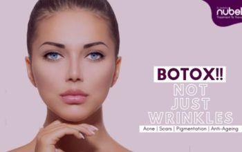 Botox Cosmetic Surgery- How does it work?