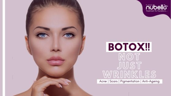 botox cosmetic surgery - How does it work?