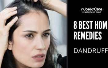 Best 8 Home Remedies for Dandruff