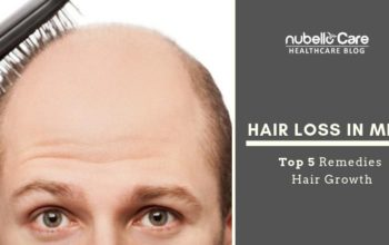 Hair loss in Men – Top 5 Remedies for Hair Loss