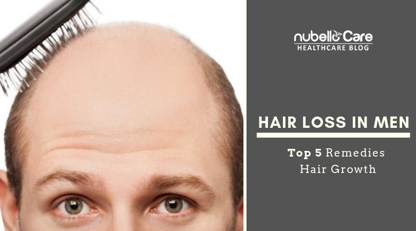 Hair loss problems in men