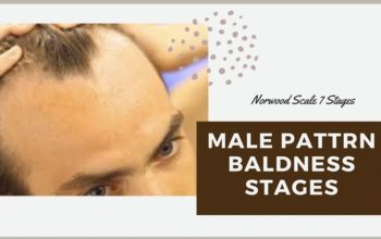 Male Pattern Baldness Stages-Norwood Scale 7 Stages