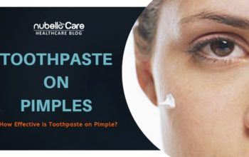 Should you go for Toothpastes on Pimples, Is it Effective?