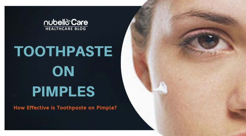 Should You Go For Toothpastes On Pimples Is It Effective Nubello Care