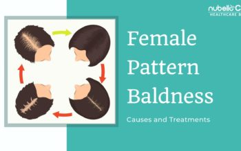 Female Pattern Baldness-Causes and Treatments