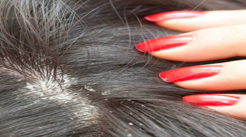 fungal infection causes hair loss