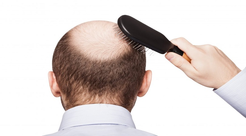 types of hair loss and baldness
