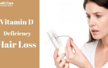 Vitamin D Deficiency Hair Loss – Symptoms