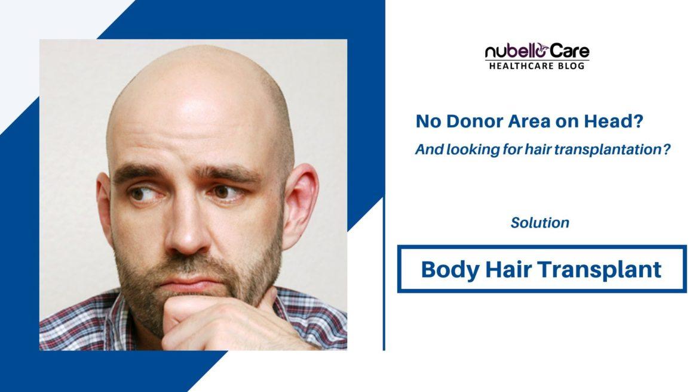 Body Hair Transplant Or BHT hair transplant