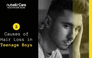 5 Causes of Hair Loss in Teenage Boys