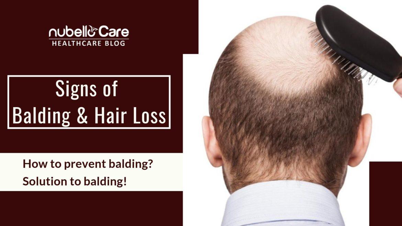 Balding, hair loss treatment