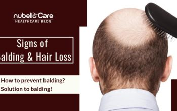 Signs of balding and how to prevent it?