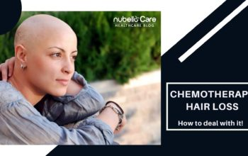 Chemotherapy Hair Loss: How to deal with it!
