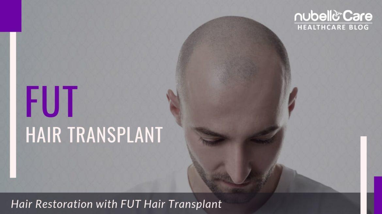 follicular unit transplant treatment FUT air Transplant