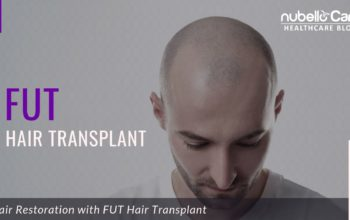 Hair Restoration with FUT Hair Transplant