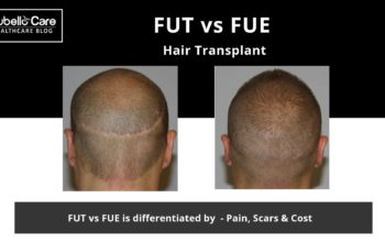 FUT vs FUE, Which hair transplant is best for you