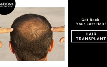 Get Back Your Lost Hair With Hair Transplant
