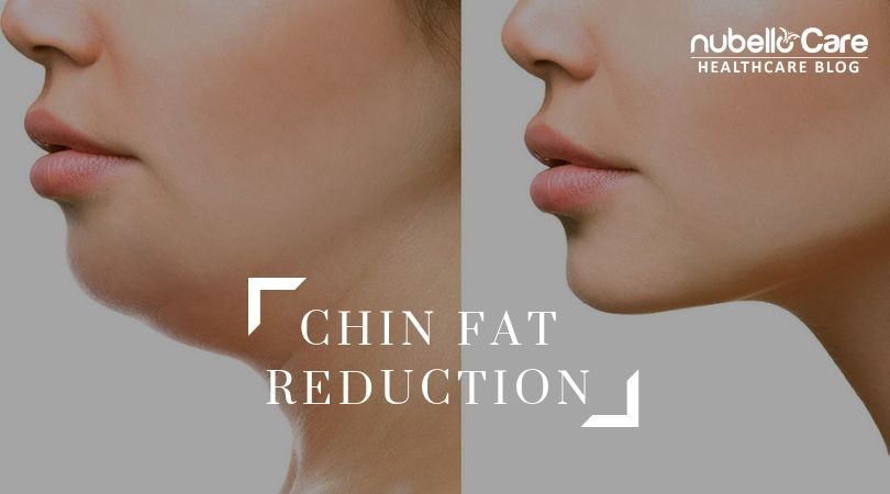 Chin fat reduction