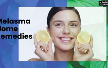 Melasma Home Remedies