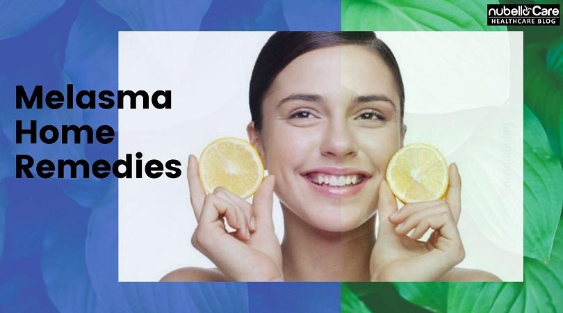 Melasma Home Remedies For Clear Skin