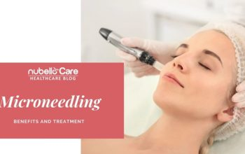 Microneedling Benefits, Treatments and Procedure