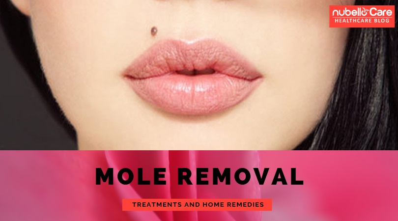 Mole Removal Treatments and Home Remedies