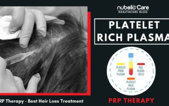 PRP Therapy for Hair Loss – Best Hair Loss Treatment