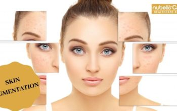 Home Remedies for Pigmentation on Face-GET SCAR FREE SKIN