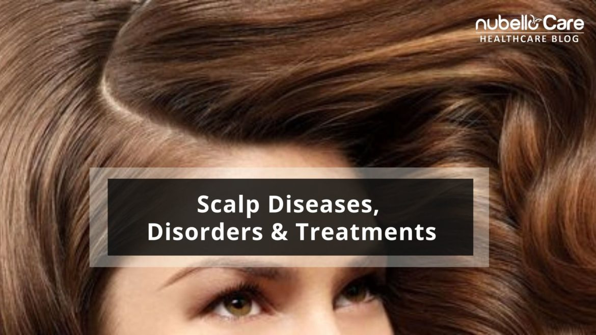 Scalp Diseases and Treatments