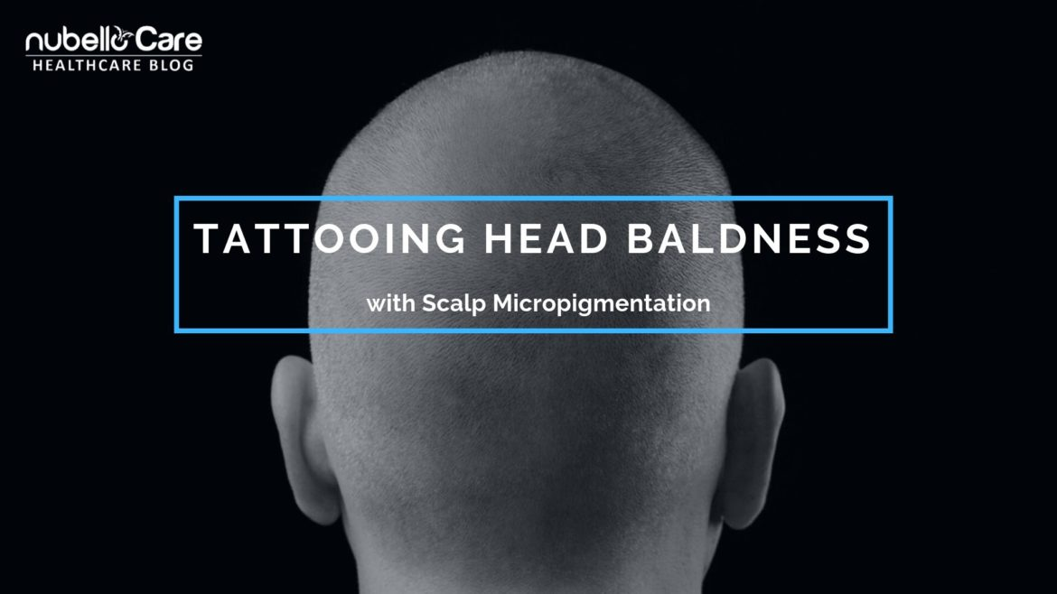 Tattooing Head Baldness with Scalp Micropigmentation
