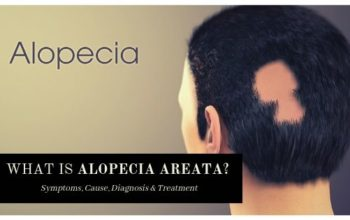 Alopecia areata – The Unpredictable Hair Loss