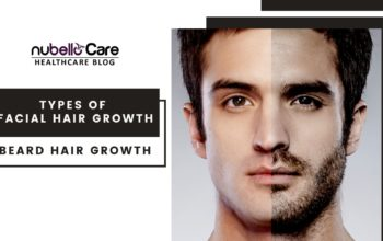 Types of Facial Hair Growth – Beard Hair Growth