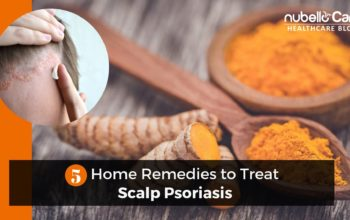 5 Home Remedies to Treat Scalp Psoriasis