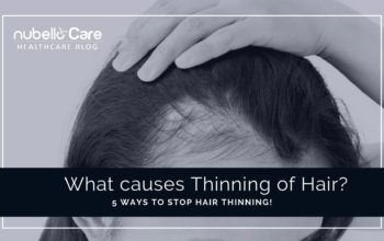What causes Thinning of Hair? 5 Ways to Stop it!