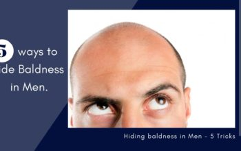5 ways to hide baldness in men!