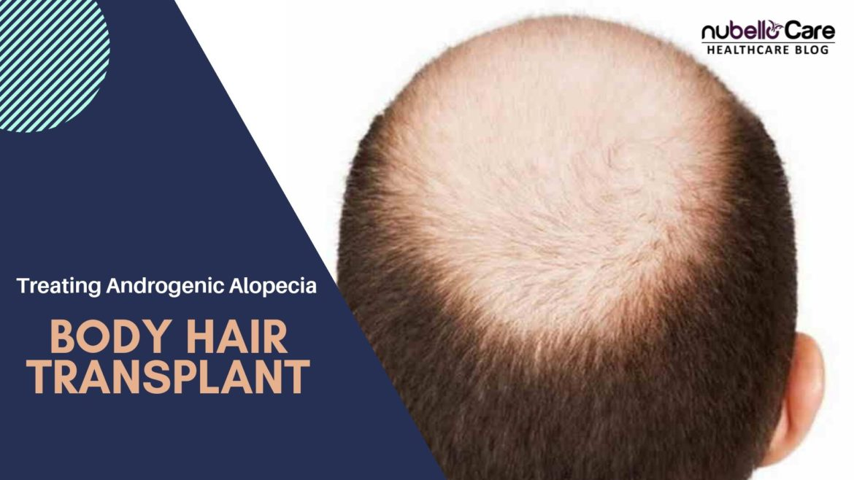 Body Hair Transplant for Treating Androgenic Alopecia