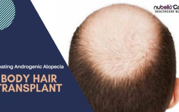 Body Hair Transplant for Treating Androgenic Alopecia