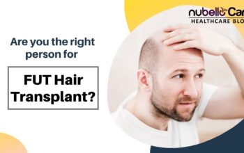 Are you the right person for FUT Hair Transplant?