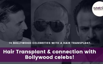 Hair Transplant and connection with Bollywood celebs