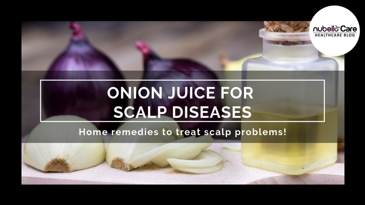 Onion Juice for Scalp Diseases