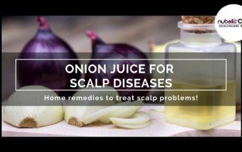 Onion Juice for Scalp Diseases!