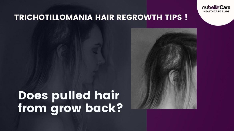 Trichotillomania Treatment Hair Regrowth Tips