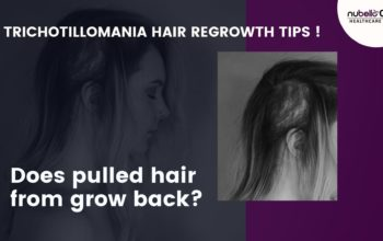Does pulled hair from grow back? Trichotillomania Hair Regrowth Tips