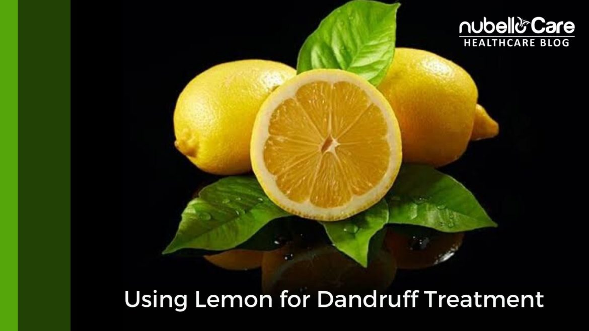 Using Lemon for Dandruff Treatment
