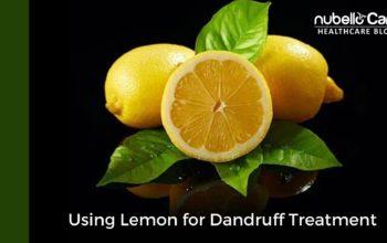 Using Lemon for Dandruff Treatment
