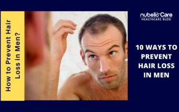 How to Prevent Hair Loss in Men? Here are 10 ways!