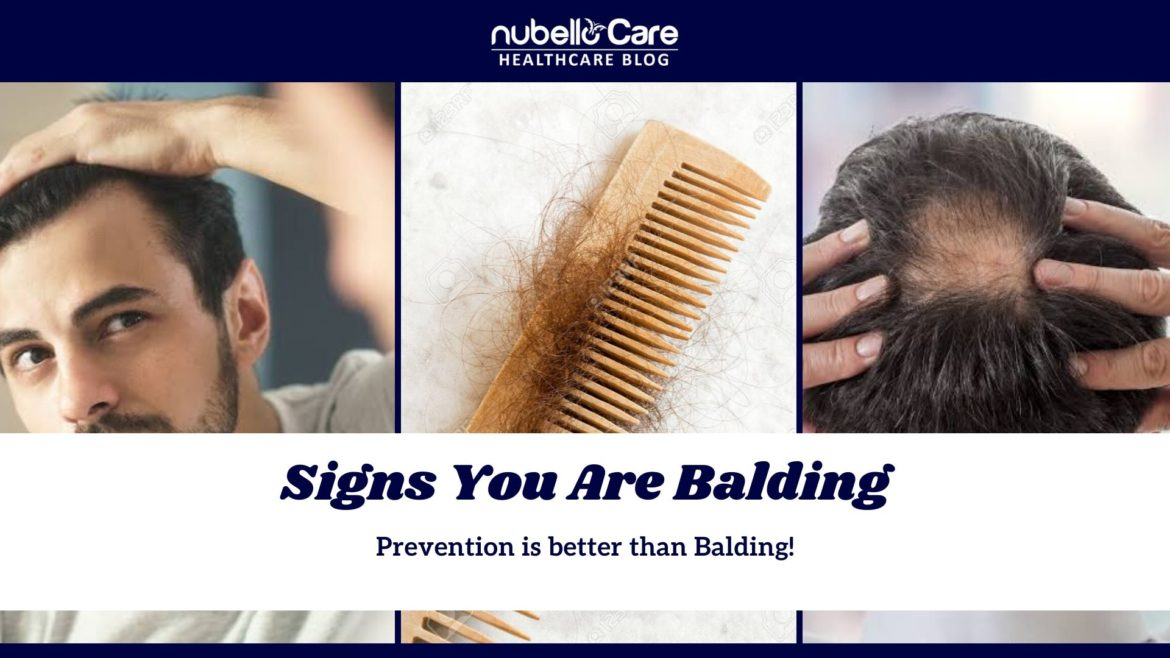 Signs of Balding
