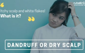 Dandruff vs Dry Scalp: How do you treat scalp problems?