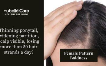 Thinning Hair, Widening Partition – Its Female Pattern Baldness
